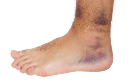 imagenes de manchas rojas en los pies si tienes mala circulaci 243 n aqu 237 est 225 c 243 mo resolver el