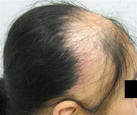 Best Hairstyles Dor Traction Alopecia | 9 best traction alopecia images on pinterest alopecia