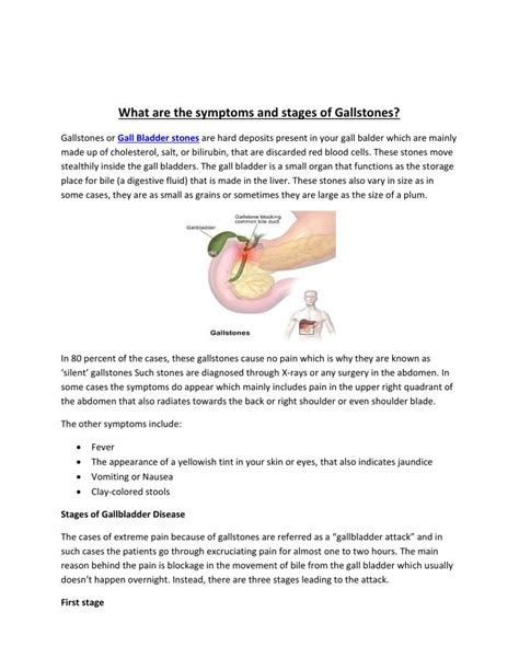 gallstones healthwise medical information on emedicinehealth gallstones symptoms causes treatment emedicinehealth ppt