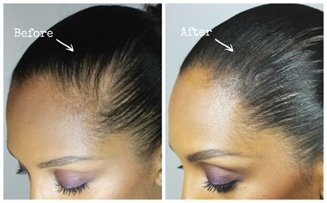 zzcover bald spot in the middle of hair best hairstyles to hide bald spots gallery styles