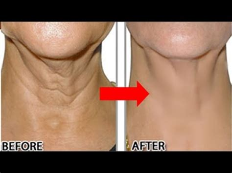 how to hide a wrinkle neck how to remove neck wrinkles permanently in 2 months look
