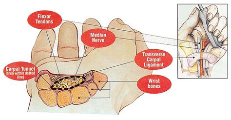 carpal tunnel cross section carpal tunnel syndrome