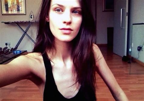 calvin klein model kayley chabot blames fashion industry  drug  eating problems metro