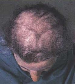 healthy fats hair loss 10 foods that help burn