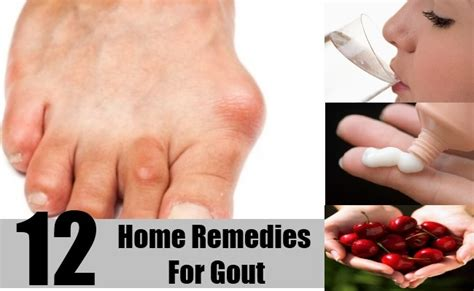 12 effective home remedies for gout how to treat gout