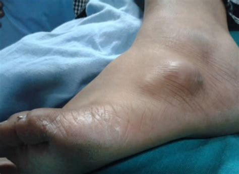 cyst on paw ganglion cyst on wrist foot ankle symptoms treatment