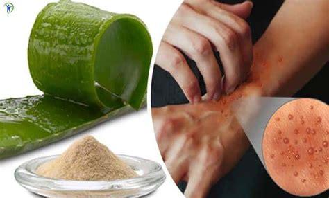 imagenes de relajantes caseros 7 remedios caseros para tratar la dermatitis atopica en