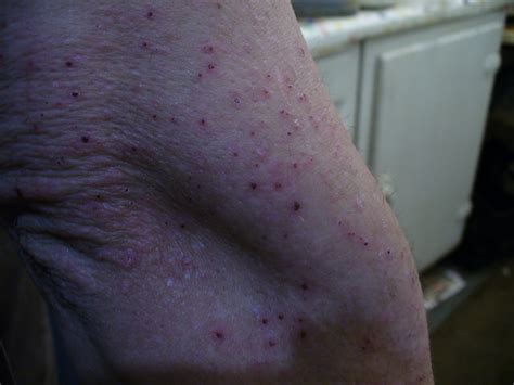 bed bug rash bed bugs rash
