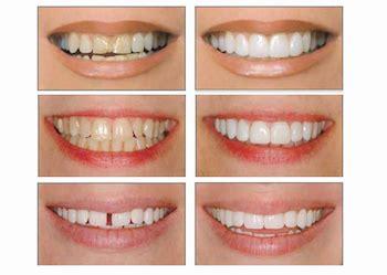 fundas zirconio problemas dientes separados la soluci 243 n al problema imoi