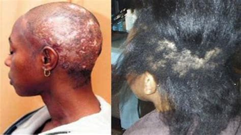 xideos of permed hair my problem with black women and the natural hair topic