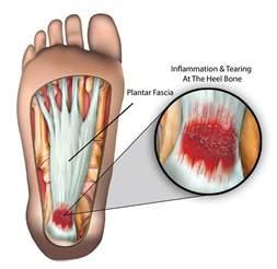 plantar fasciitis symptoms and management sportnova uk