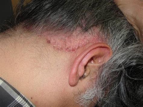 psoriasis cuero cabelludo skin and hair problems scalp psoriasis olilab