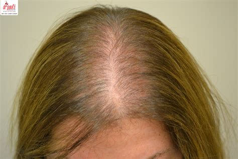 pictures of womens scalp hair hair loss after pregnancy and sore scalp hair loss