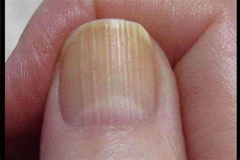 split nail bed dedalwisdomuh blog