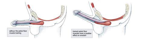 Pelvic Floor Muscles Exercises by Kegel Exercises Strengthen The Pelvic Floor Muscles
