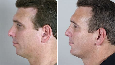 weak chin men patients of the month for october 2011 chin implants for