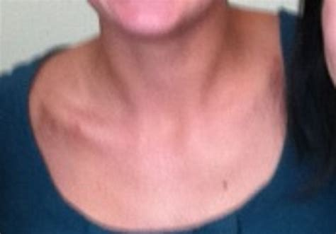 images of love bite on neck pin hickey on neck tumblr on pinterest