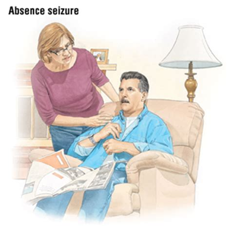 seizure symptoms epilepsy guide causes symptoms and treatment options