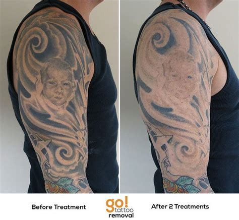 quarter sleeve tattoo removal 679 best images about tattoo removal in progress on