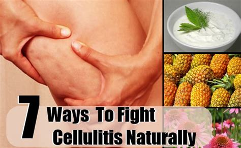 best antibiotics for cellulitis how to fight cellulitis naturally best ways to