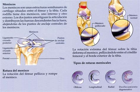 menisco interno lesiones de menisco mariavillalbaquiromasaje