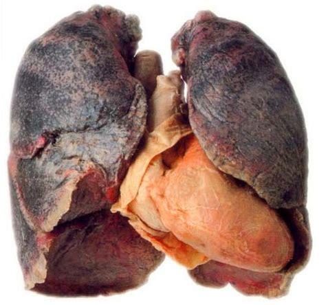 lungs of a smoker | www.pixshark.com images galleries