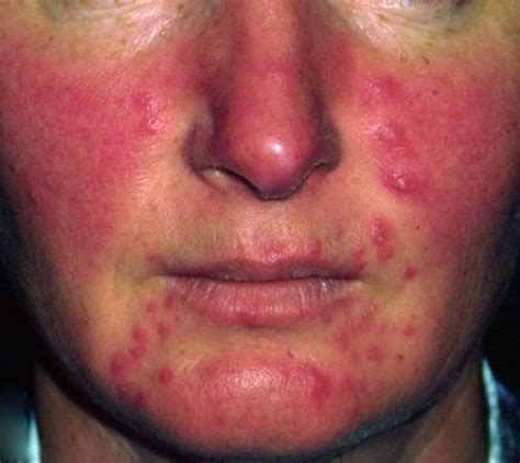 how to cure a red swollen nose rosacea support group rosacea pictures treatment symptoms causes diet