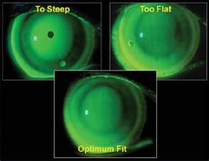 contact lens spectrum contact lens case reports