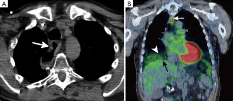 state   art molecular imaging  esophageal cancer