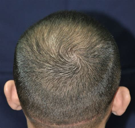 hair transplant in the philppines cost hair transplant cosmetic surgery philippines