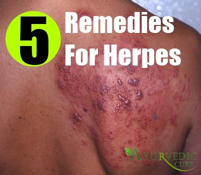 herpes home remedies treatments cure usa uk