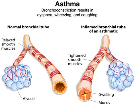 wheezing and asthma bronchoconstriction dyspnea wheezing and coughing pediatric pulmonologists