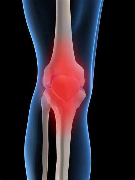 Suplemen Osteoarthritis dietary supplements for osteoarthritis nccih