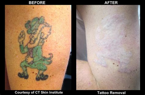 pico laser tattoo removal cost removal archives connecticut skin institute