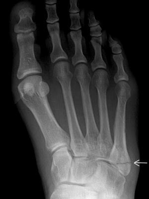 injury revisited: dez bryant, jones fracture therapydia