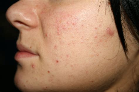 Acnes Spot My Black Spots How To Get Rid Of Acne Without