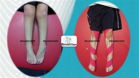 Kinesio Tap 5 Warna 20 best images about kinesio on therapy