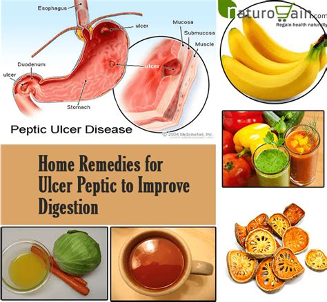 8 best home remedies for ulcer peptic to improve digestion