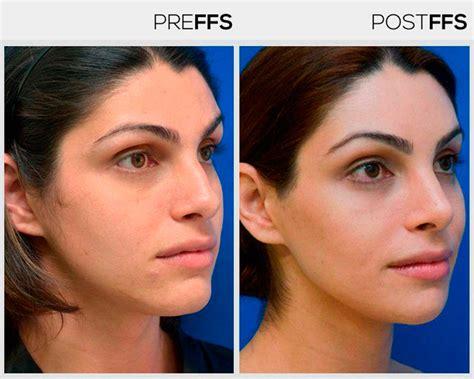 mtf ffs facial feminization surgery before and after facial feminization surgery ffs surgery facialteam