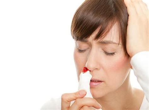 nose bleed how can i prevent nosebleeds new health advisor