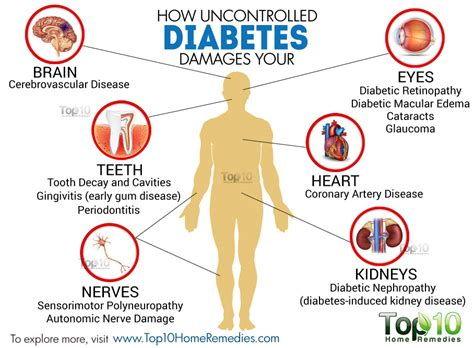 how does a get diabetes what is your diabetes knowledge insurenz co nz