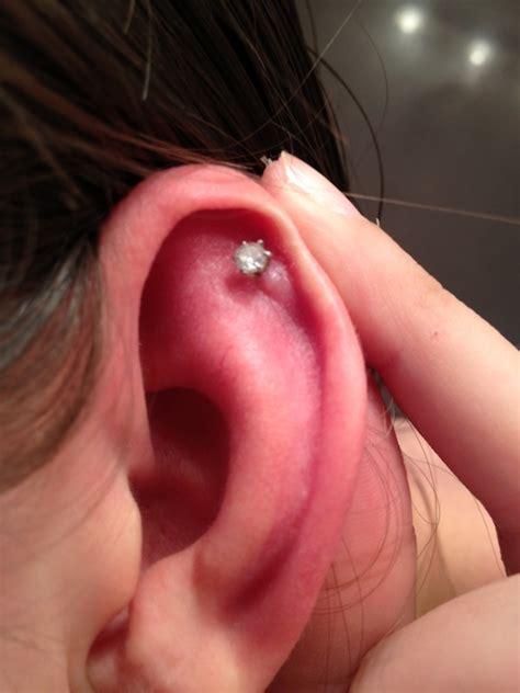 keloid cartilage piercing causes symptoms treatment