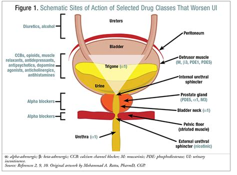 urinary incontinence after c section pharmacists role in managing male urinary incontinence