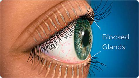 meibomian gland dysfunction treatment – southland eye