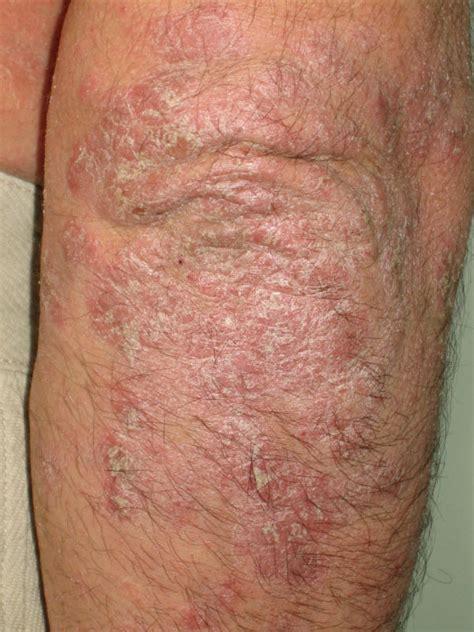 granos en el cuero cabelludo dermatologia 191 qu 233 es la psoriasis doctora lorea bagazgoitia dermatolog 237 a