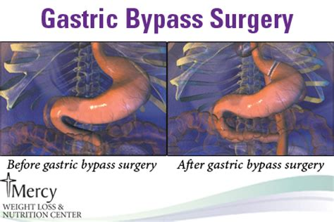 gastric bypass surgery diagram diagram of stomach after gastric bypass choice image how