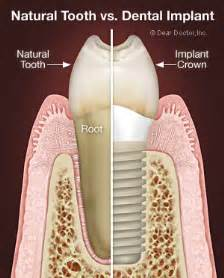 Maintain Your Dental Health With Proper Oral Hygiene » Ideas Home Design