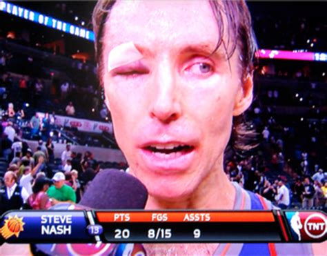 steve nash eye injury press  social media seo