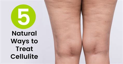Lose Weight Lose Cellulite will losing weight get rid of cellulite 17 ways to lose