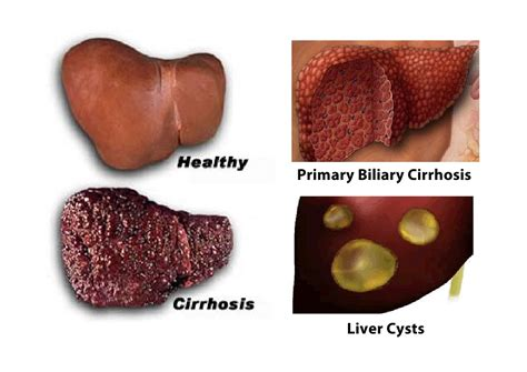 Sauna Detox For Primary Biliary Cirrhosis by Liver Health